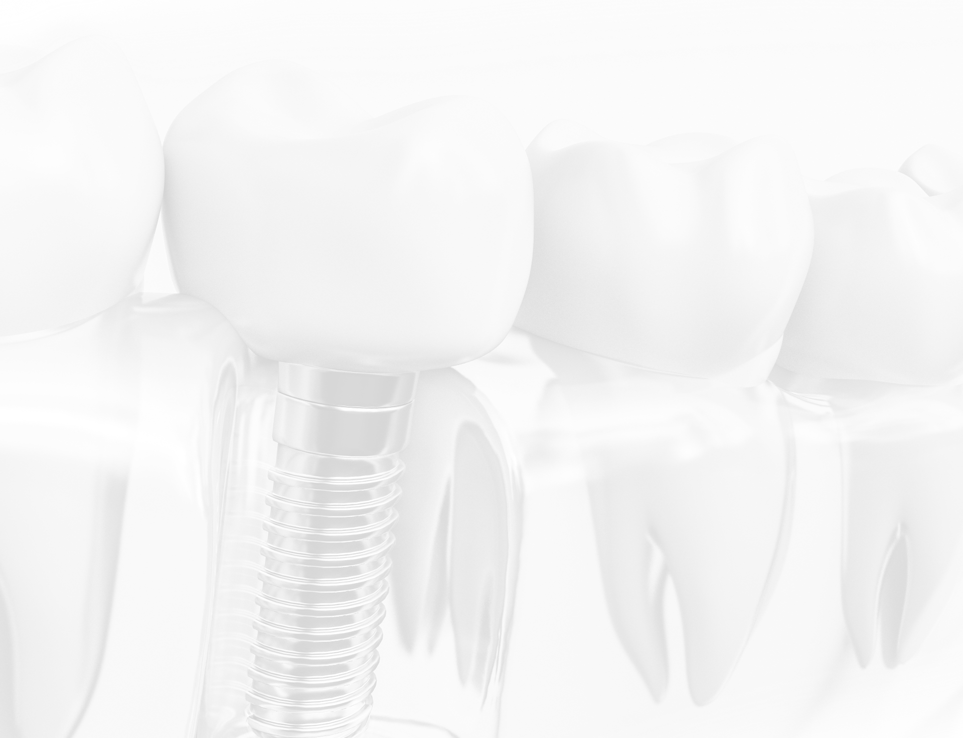 Black and white faded image of dental implant on implant post with transparent gums