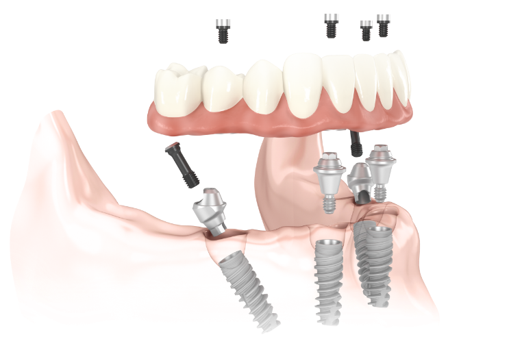 Diagram of dental implant process on a model prosthesis