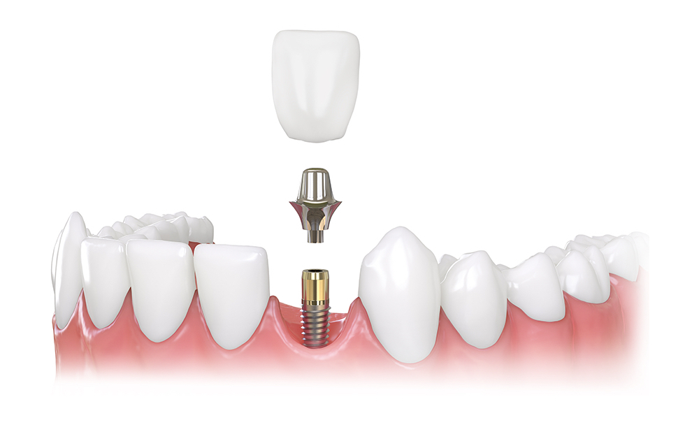 Single dental implant placed on implant post