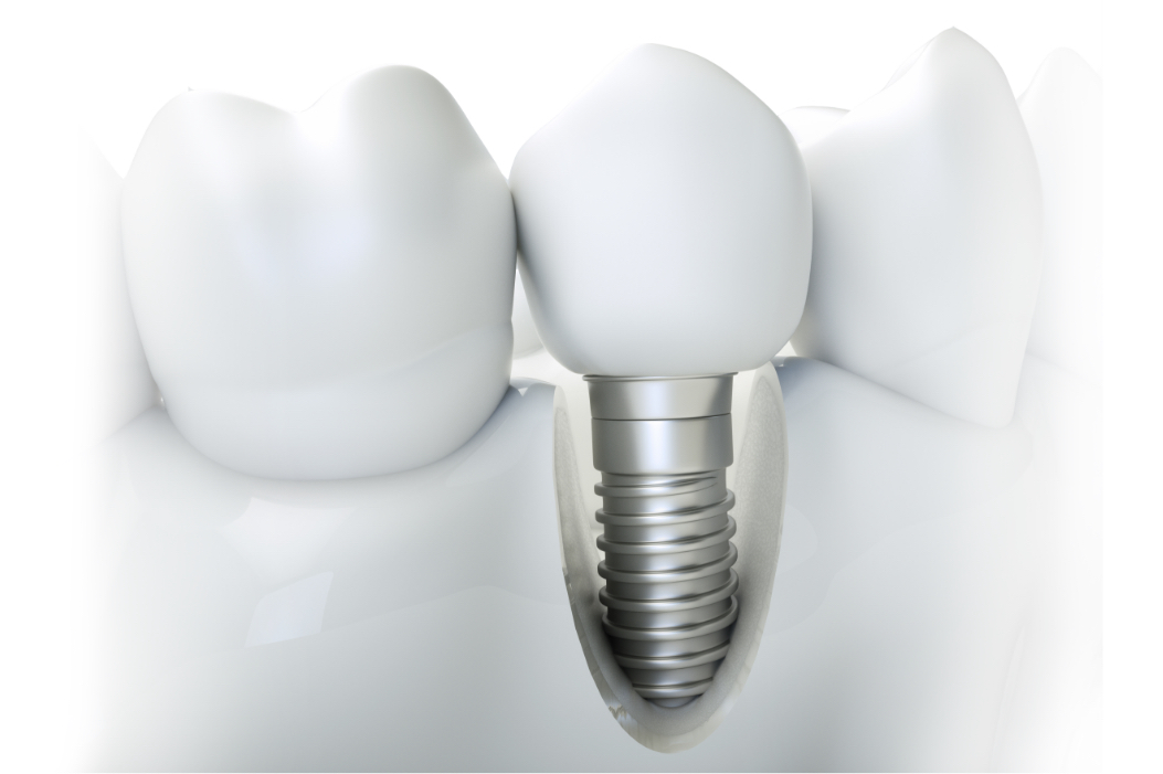 Jaw model with cut-out showing a completed single tooth dental implant