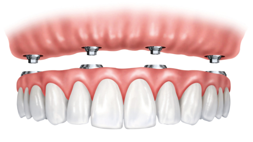 Image of implant supported dentures