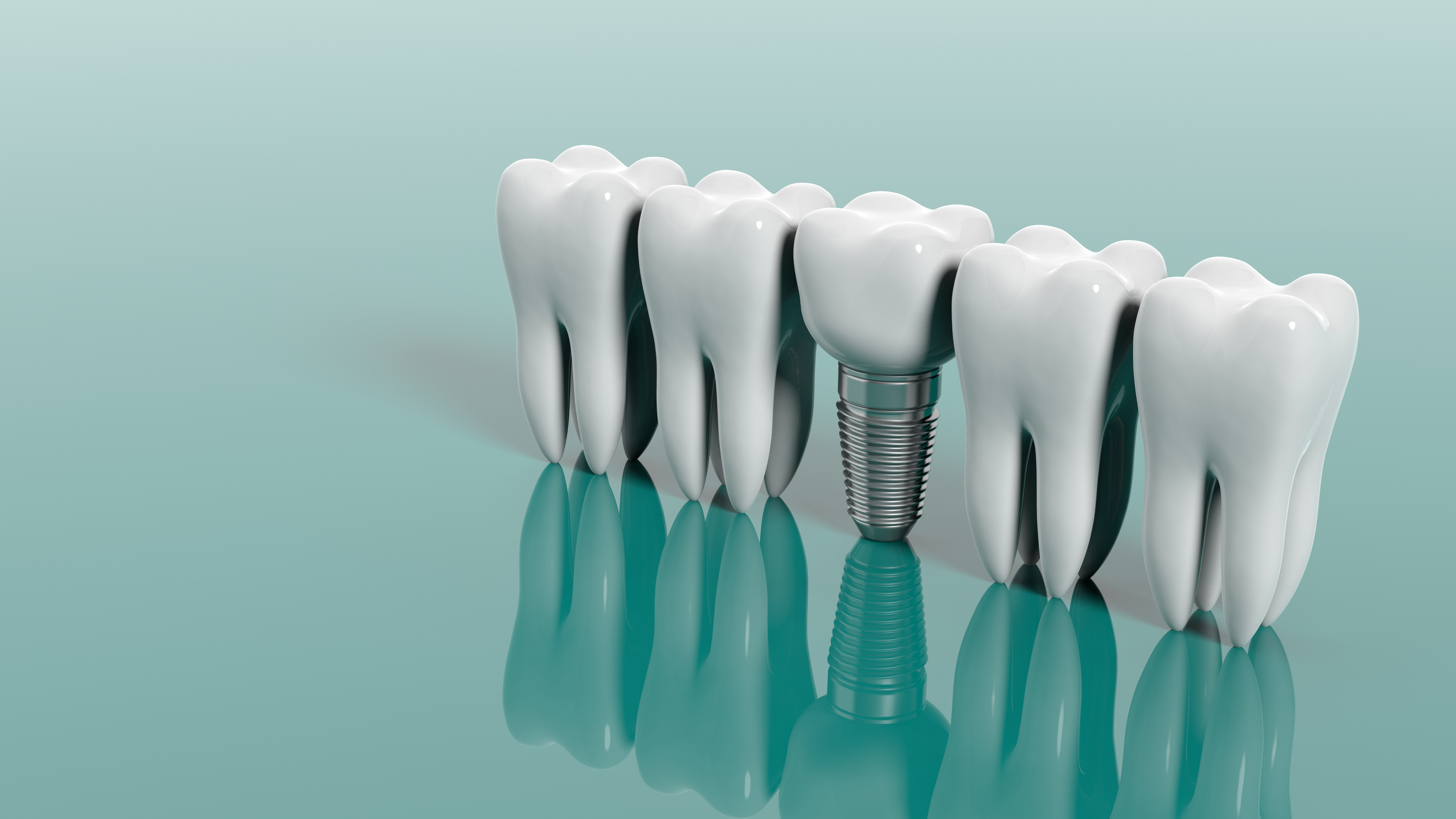 dental implants in NYC