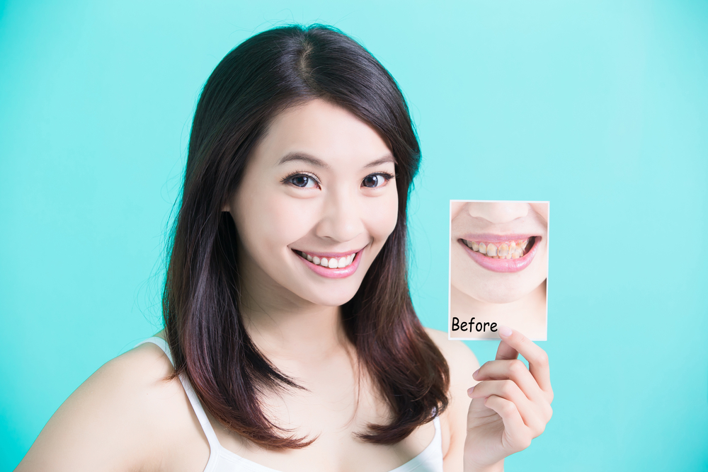 dental patient invisalign before and after for National Dental