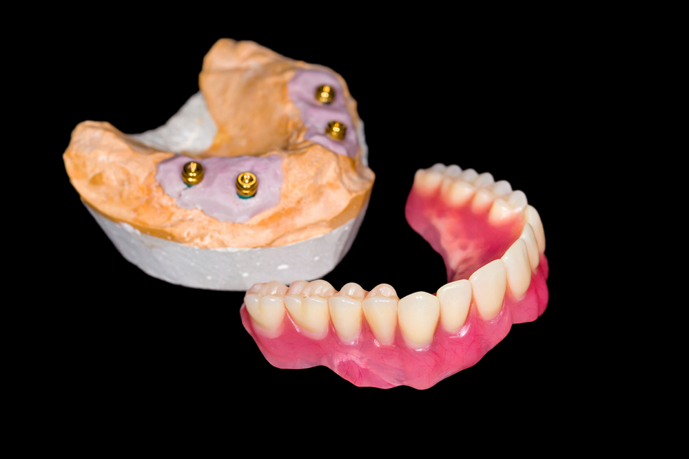 11 reasons to rethink dentures and look into dental implants