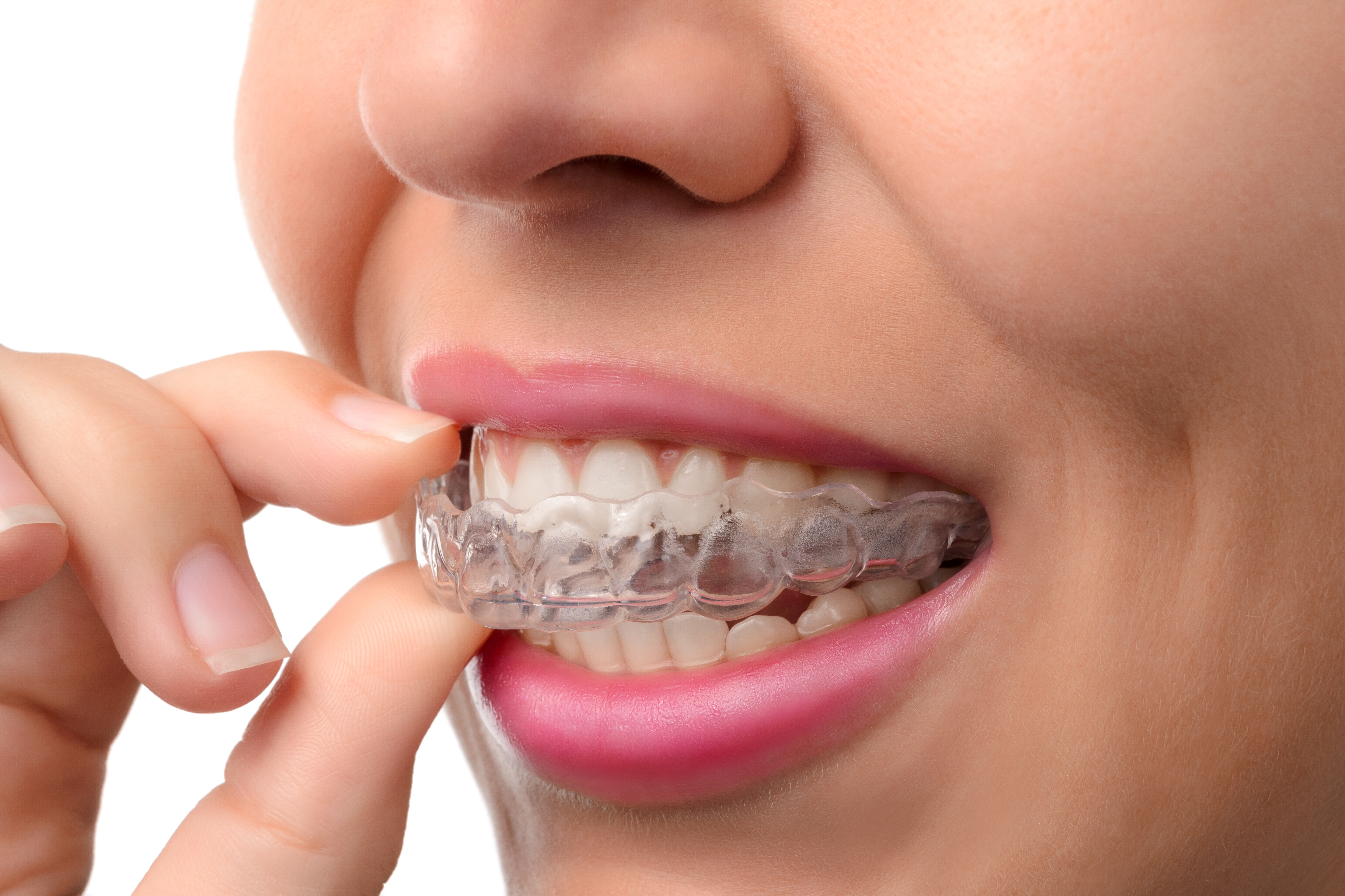 What Does Wearing Invisalign Feel Like?